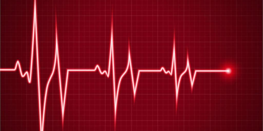 ایجاد ضربان قلب