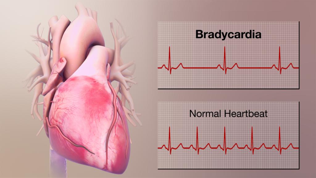 نشانه های آریتمی قلبی