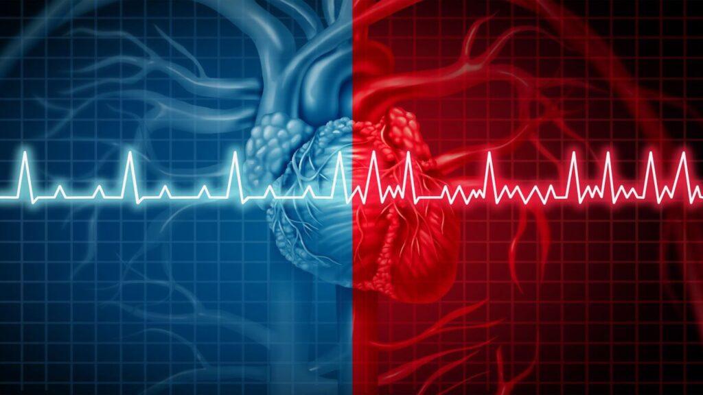 بررسی آریتمی های خطرناک قلبی